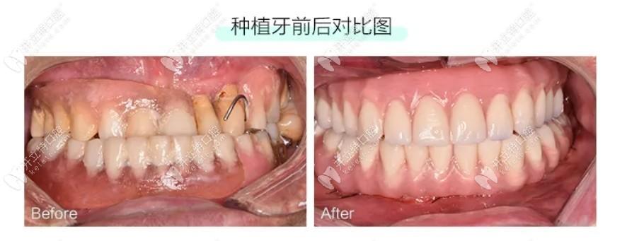 穿翼板种植牙实例:57岁做全口即刻种植牙摆脱了假牙的尴尬
