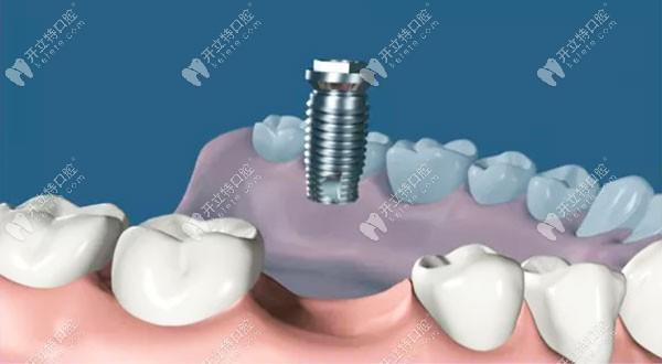 暨大穗华口腔的冯智强博士视频亲述:牙齿是怎么种植出来的