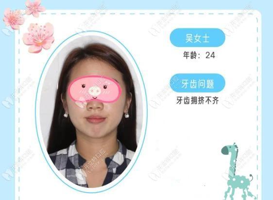 网友分享:牙列重度拥挤戴MBT直丝弓陶瓷托槽20个月的效果