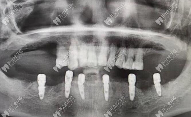 杭州余杭口腔张春阳医生的ALL-ON-6半口种植牙技术,秀了