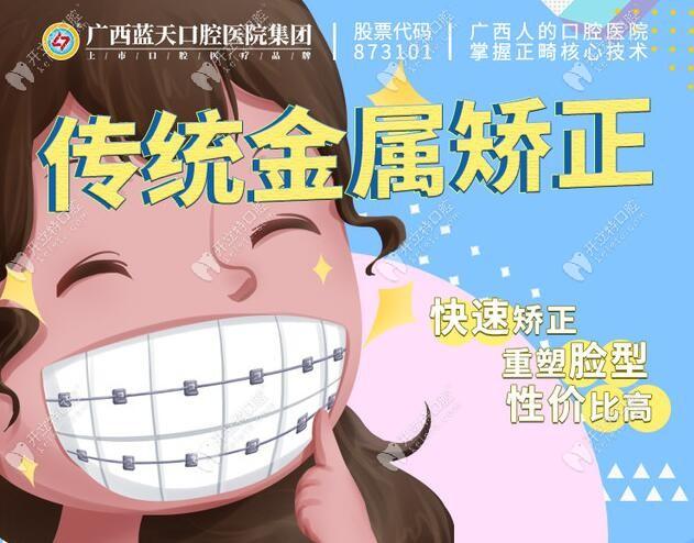 把玉林玉州区蓝天口腔医院的牙齿正畸费用吃的透透的