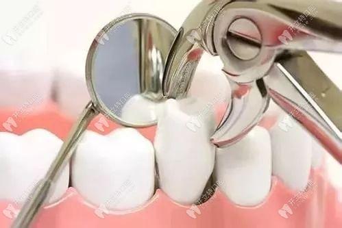 慈溪鼎植口腔拔牙多少钱?非智齿牙100元一颗可以拔除吗?