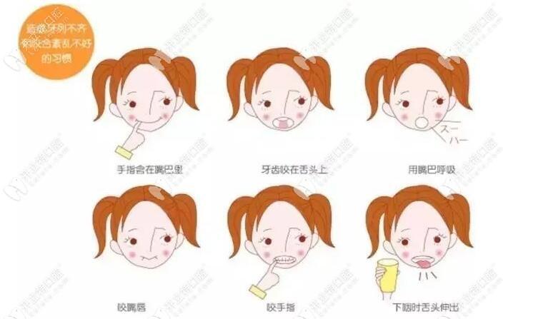 6.1来重庆美奥看牙:儿童地包天做mrc肌功能矫正价格太实惠了
