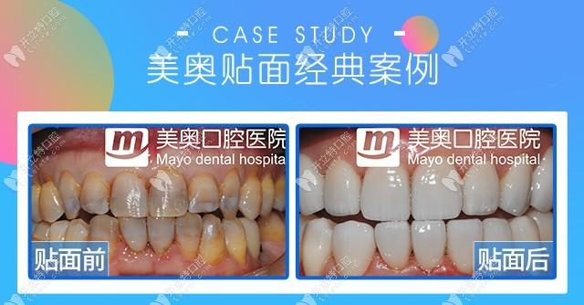 重度四环素牙做贴面病例分享,重庆美奥口腔贴面效果真不错