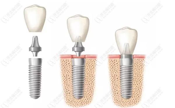 解答韩国登特斯dentis种植牙质量怎么样~和奥齿泰比哪个好