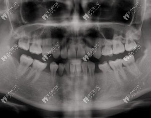 种植牙做上颌窦提升很疼吗?用种牙经历全过程来解答!