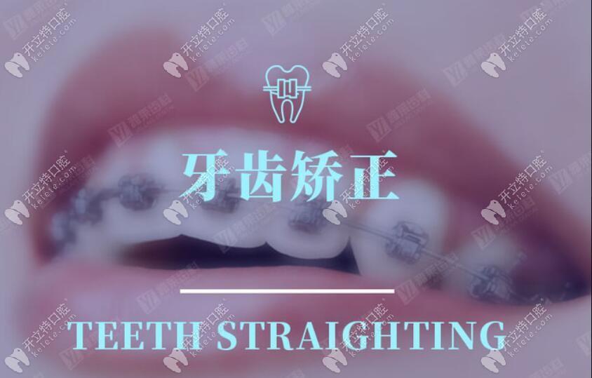 这次杭州滨江区的隐适美隐形牙套费用交199可抵1999