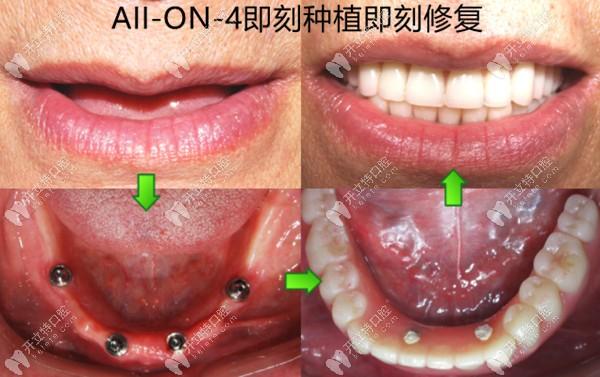 AII-ON-4即刻种植即刻修复
