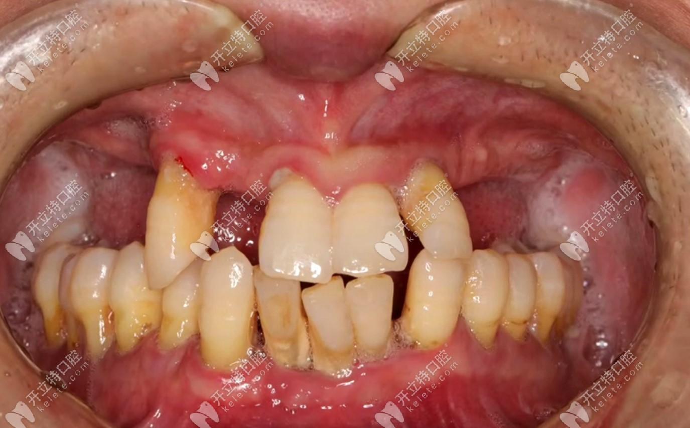 重度牙周炎在北京钛植的种牙经历,拔掉余牙做allon6全口种植