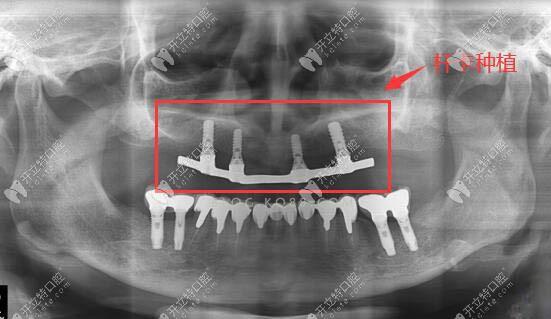 杆卡式种植覆盖义齿的优缺点及价格分析