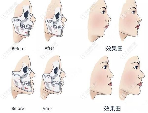 正颌手术效果图