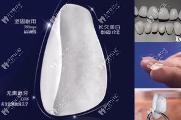 牙齿修复瓷贴面