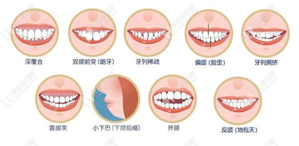 需要矫正牙齿的类型