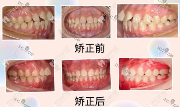 三仁口腔的龅牙矫正病例