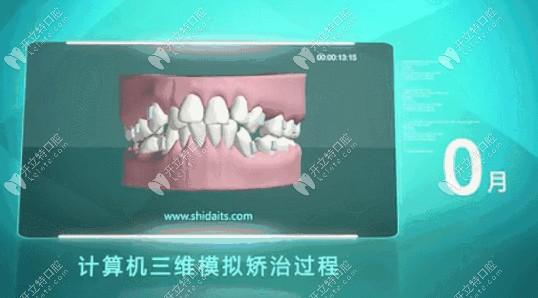 计算机模拟牙齿矫正前的样子