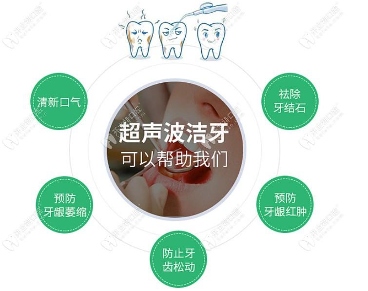 深圳超声波洁牙有哪些优点