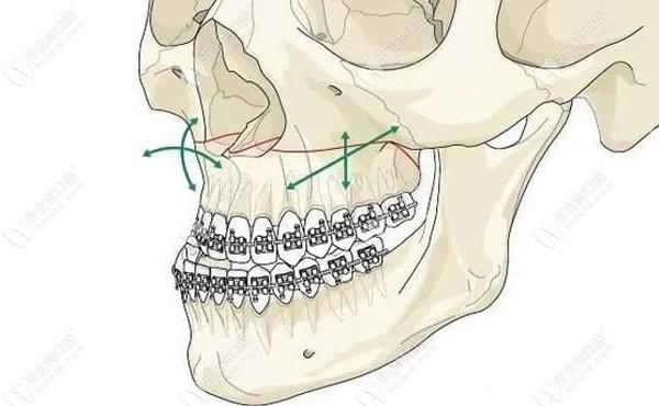 关于正颌正畸联合治疗费用及治疗的最佳年龄有答案了