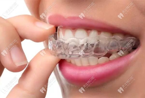 隐形牙套免费试戴活动
