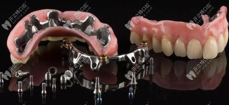 杆卡覆盖义齿的各个组成