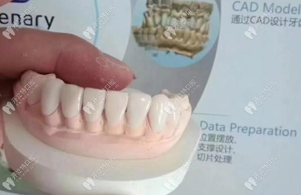 全瓷牙贴面修复效果