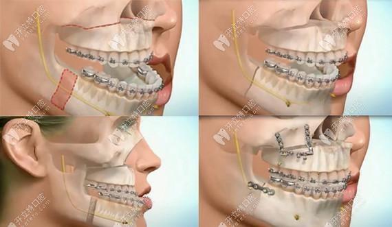 做正颌手术的过程示意图