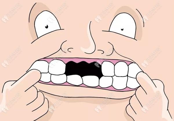 上门牙缺失的照片