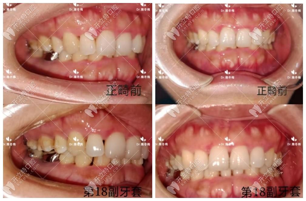 深覆合三度+中度牙周炎做的隐适美隐形矫正,已戴了18副牙套