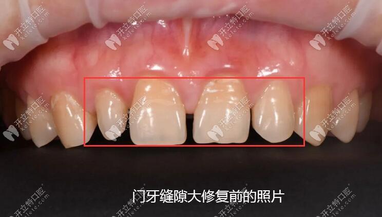 门牙有缝隙做四颗爱尔创单冠全瓷牙的真实照片你要看吗