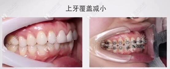 深覆合牙齿矫正前后脸型对比照好明显,仅6个月咬合恢复正常