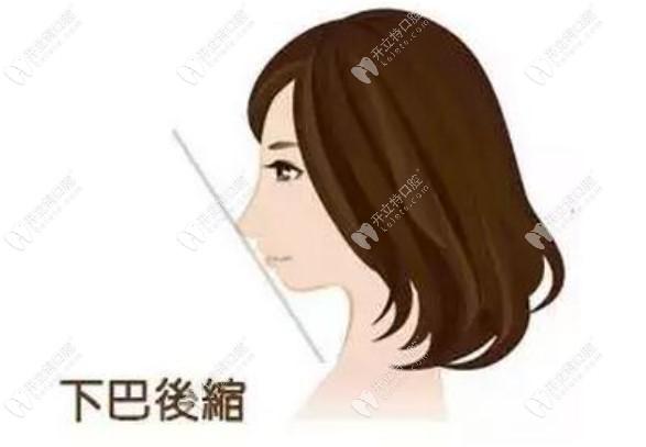 凸嘴下颌后缩是做正颌还是颏成型?两者的区别和风险要了解