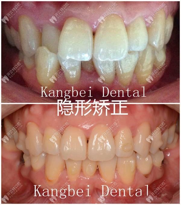 牙列拥挤造成的错颌畸形选隐适美隐形牙套矫正,效果如图