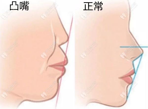 广州广大的根尖下截骨正颌手术,帮40岁阿姨改善了凸嘴龅牙