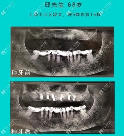 68岁叔叔长期戴假牙不适,急忙来中诺口腔做立得用半口种植