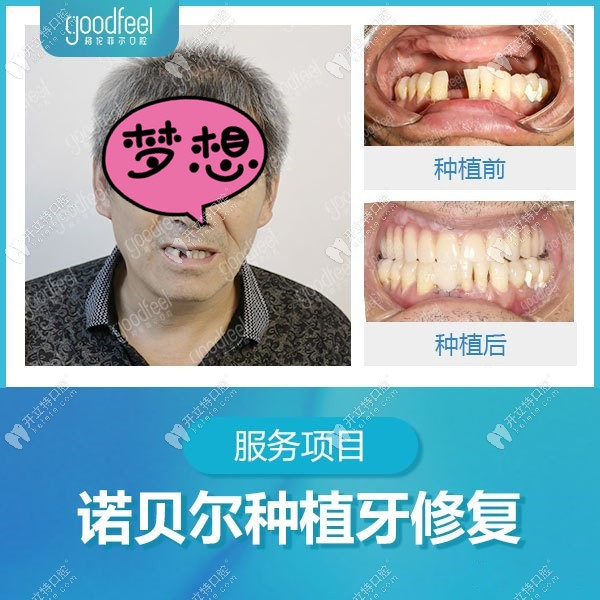 格伦菲尔口腔种植牙病例