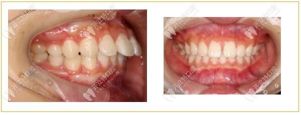 门牙缝隙+前凸戴金属自锁牙套矫正后的变化有多大/原相机
