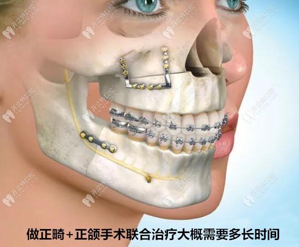 正畸正颌联合治疗的时间大概要多久?看治疗步骤和流程就OK