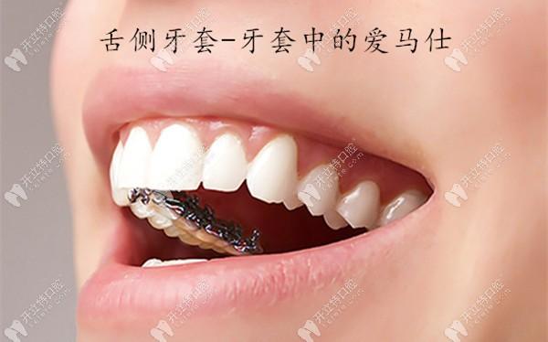 银川哪里能做舌侧牙套?求一份正畸出名的医生名单