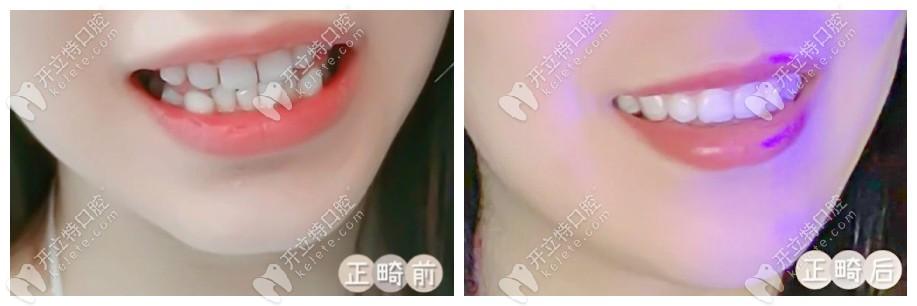 我找南京美奥口腔正畸医生朱峰做的隐形矫正,看效果怎么样