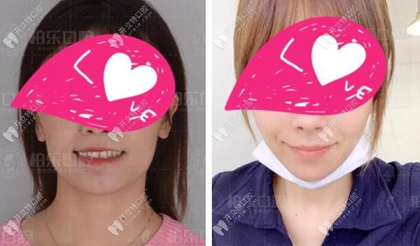 南宁隐适美矫正龅牙嘴突骨性下巴后缩的成功病例你看过没