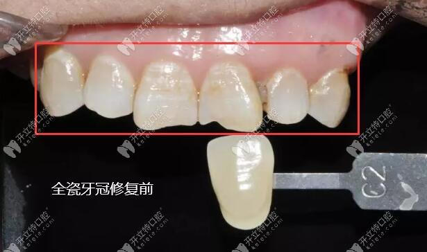 效果图展示:牙体缺损做的德国威兰德二氧化锆全瓷牙冠修复