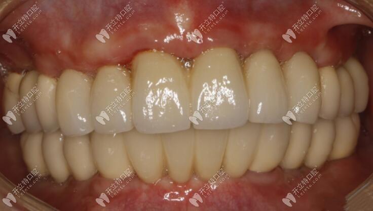 天津武清区40岁阿姨已用all-on-6种植牙技术恢复口内24颗牙齿