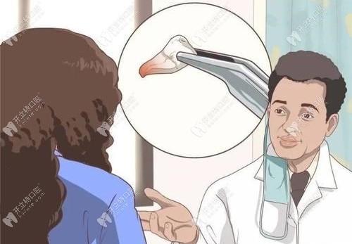 多生牙怎么治疗