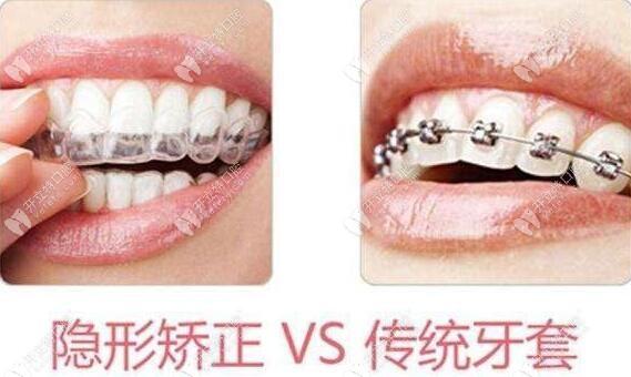 布吉张志强口腔牙齿矫正器