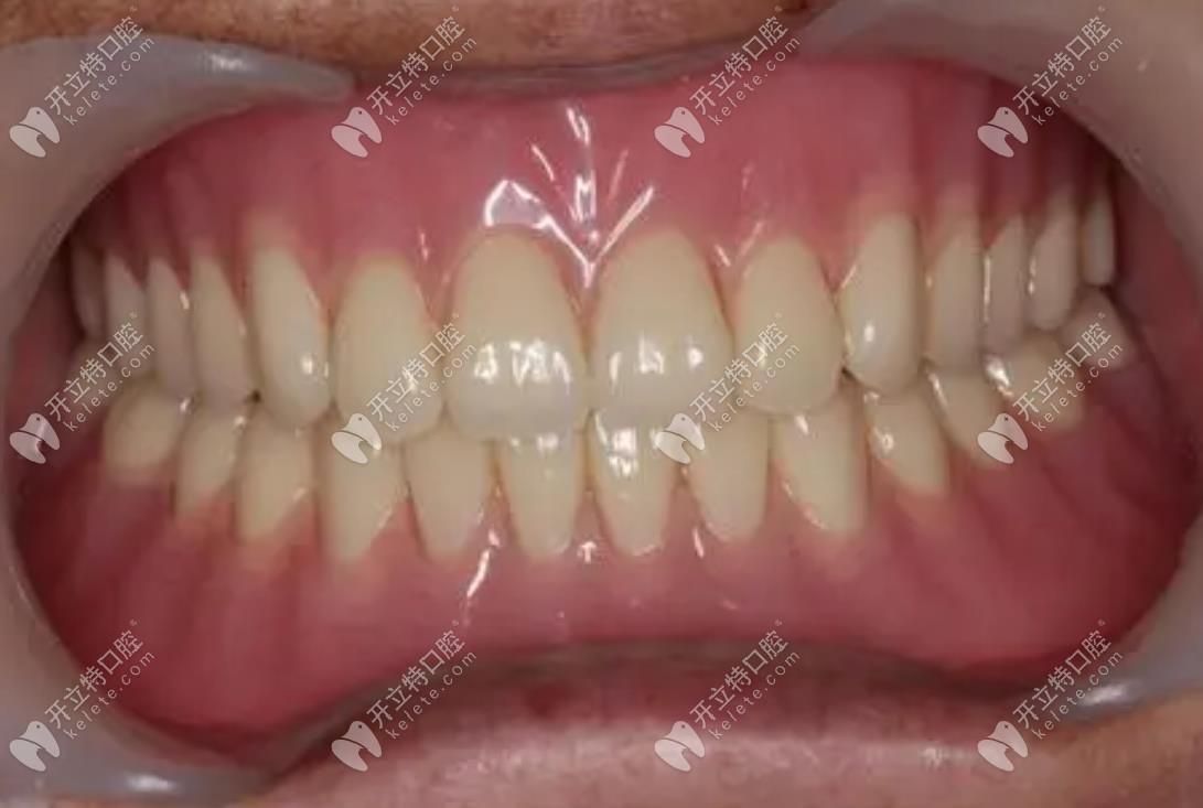 吸附性义齿在口内的外观呈现
