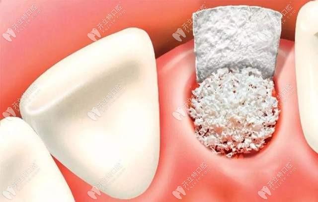 牙龈萎缩骨量不足需要植骨粉