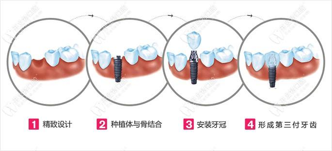 深圳布吉张志强口腔种植牙流程
