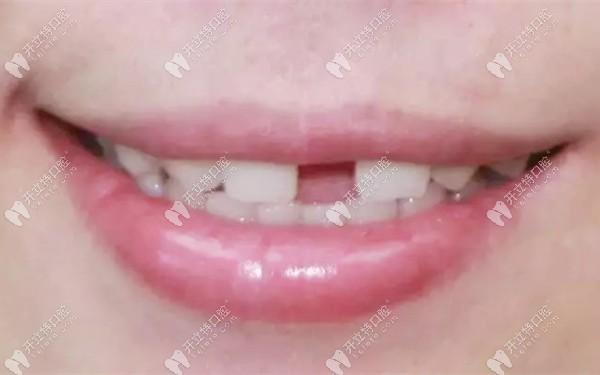 门牙多生牙拔掉后会留下一个大缝隙