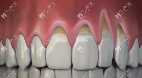 牙龈萎缩的示意图