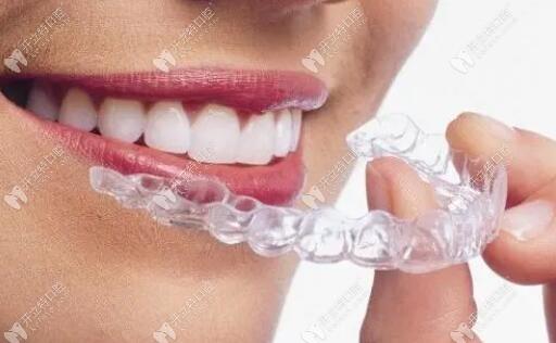 隐适美隐形牙套