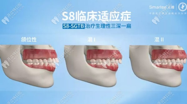 S8-SGTB主要治疗生理性三深一扁